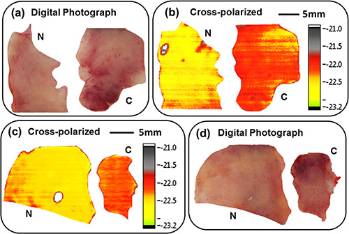 The panel shows optical photographs (a) and (d) and cross-polarized terahertz reflection images (b) and (c) of fresh normal (N) versus cancerous (C) tissues from a human colon.