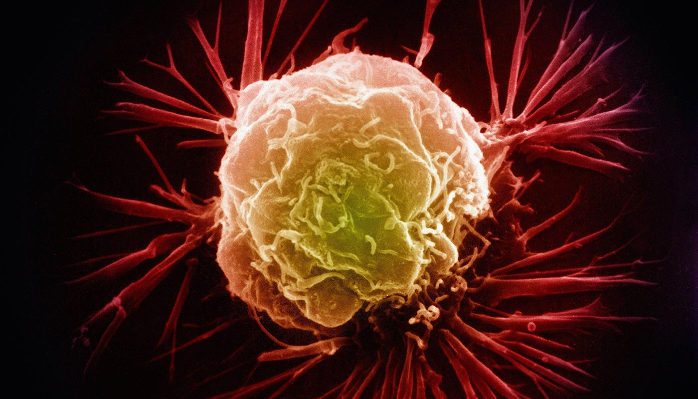 Closeup of a breast cancer cell