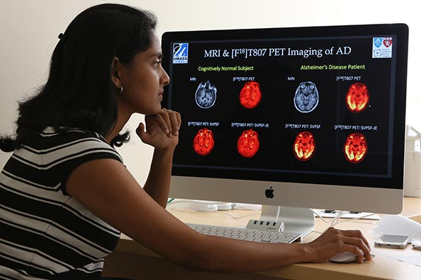 Asst. Prof. Joyita Dutta examines MRI and PET scans of a normal, healthy brain on the left and the cognitively impaired on the right due to Alzheimer's. The brain's diseased areas show up bright in the latter images.