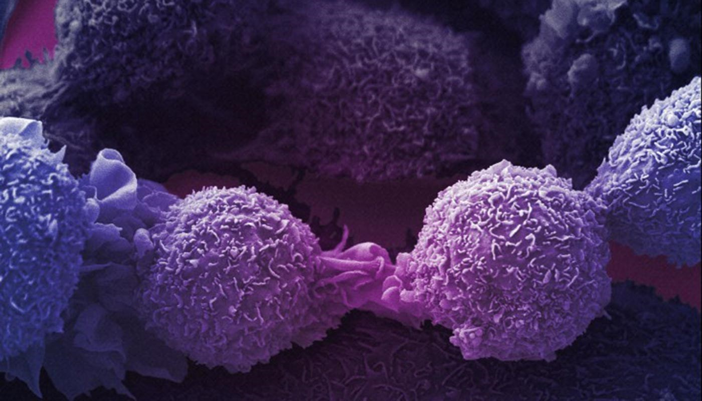 Highly magnified view of lung cancer cells